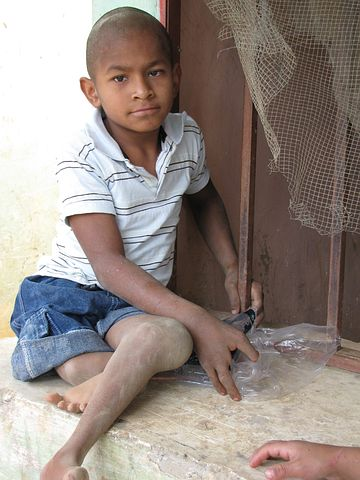 young boy with walking disability